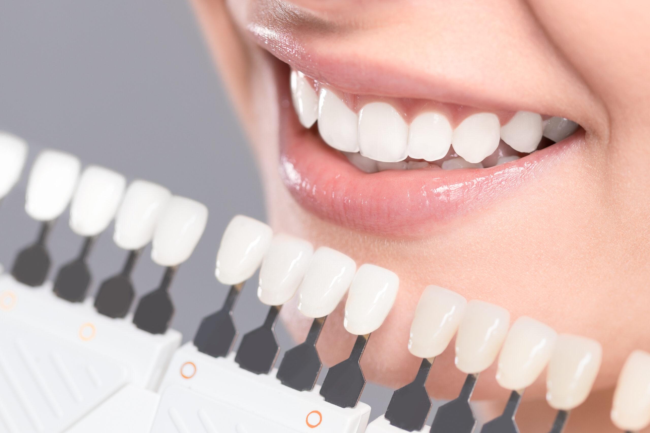 prevenzione ed interventi per un sorriso ed una sicurezza dentale-studio-sabiu